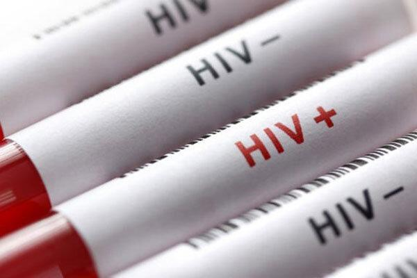 شناسایی 207 مورد ابتلا به ایدز در کهگیلویه و بویراحمد