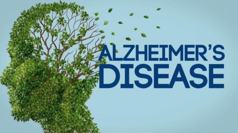 بیماری آلزایمر : علایم و نشانه ها - تشخیص و درمان