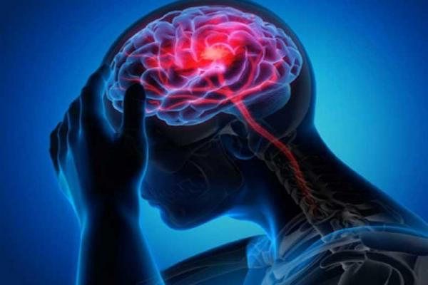 علائمی که نشانه اختلال میگرن هستند