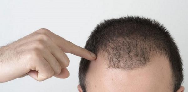 علت ریزش مو در مردان جوان چیست؟